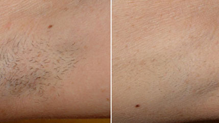 laser hair removal gallery miami doral dermalaser