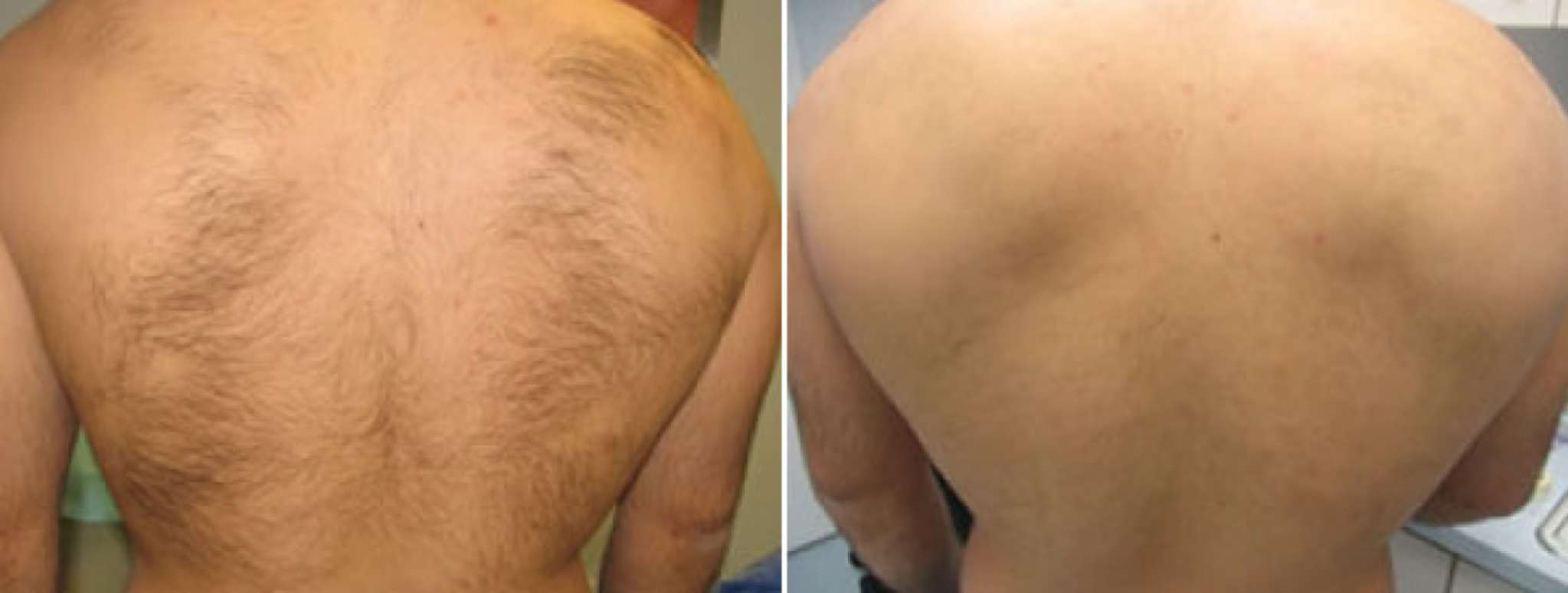 Brazilian Laser Hair Removal Before And After Photos 8