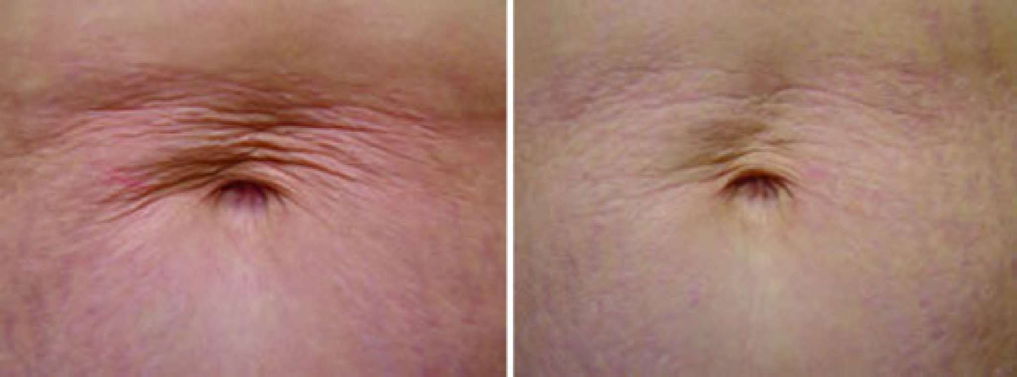 Restylane botox velashape laser hair removal dysport and for Tattoo removal baton rouge