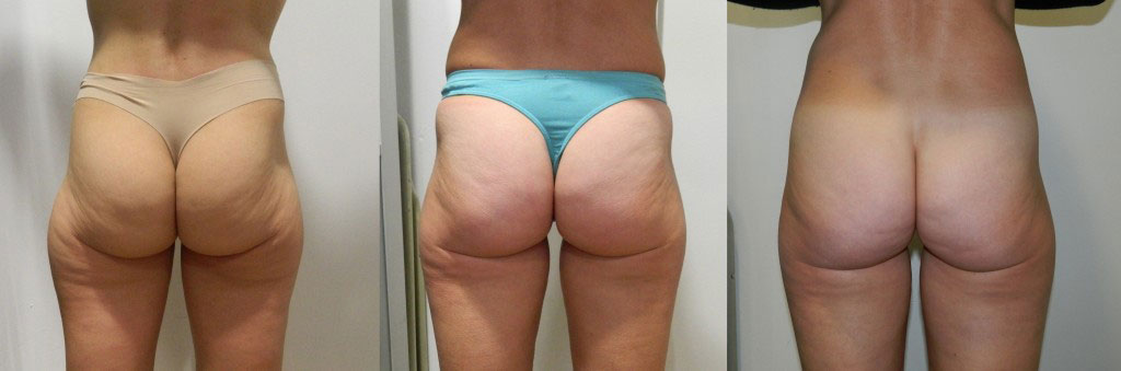 Velashape 3 before and after