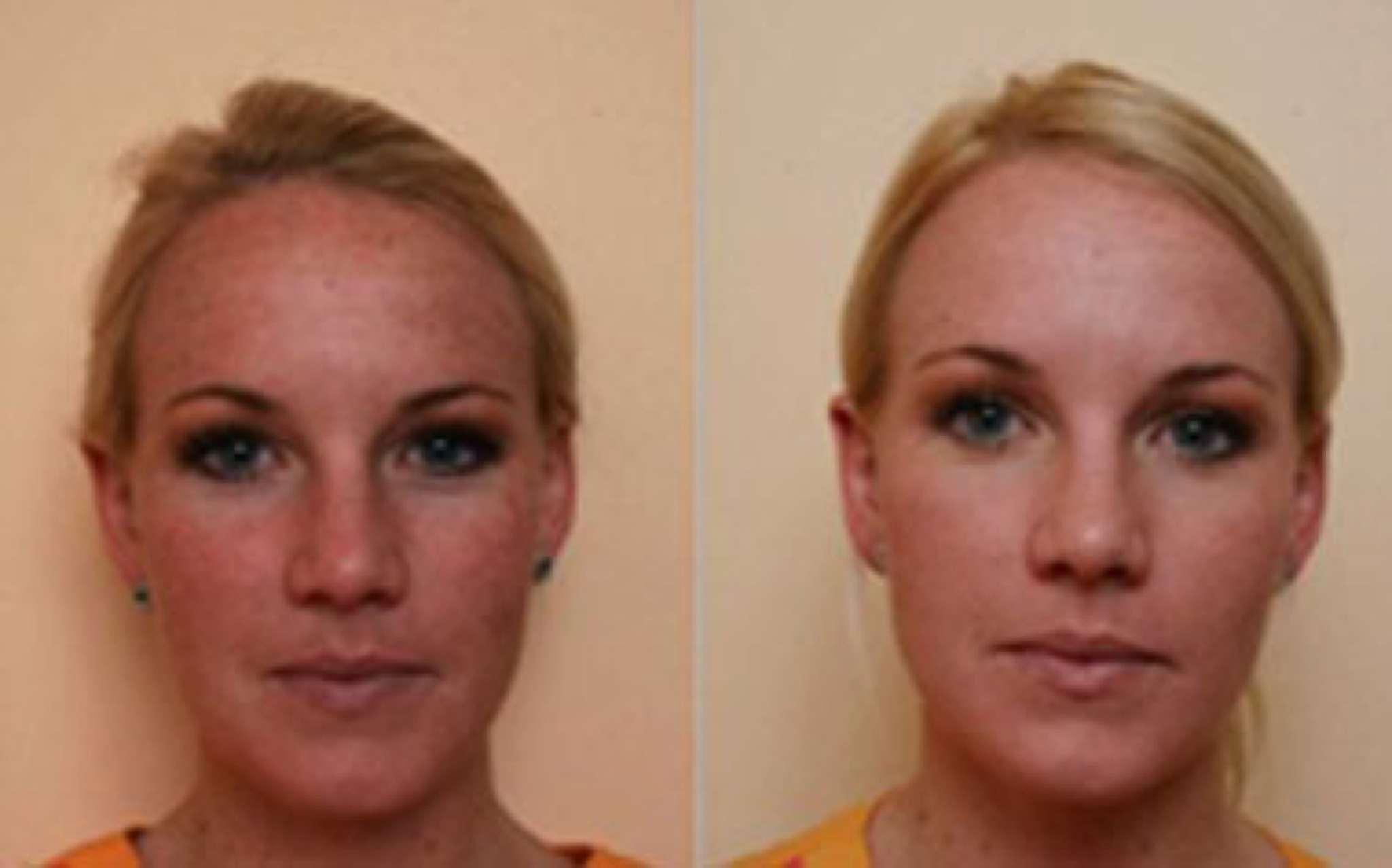 Before & After Images | Miami & Doral | Dermalaser Med Spa