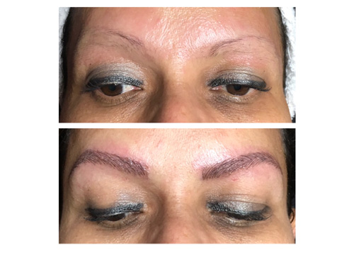 IPL-Fotofacial before and after images