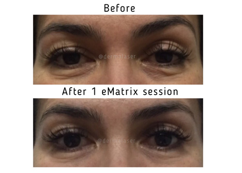 eMatrix before and after images